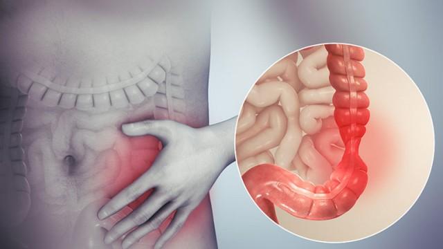 Co thắt đại tràng – Nguyên nhân, biểu hiện, chuẩn đoán và cách điều trị tốt nhất