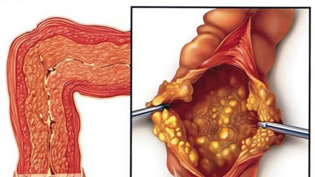 Triệu chứng, nguyên nhân bệnh viêm đại tràng giả mạc và các phương pháp điều trị tốt nhất hiện nay